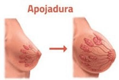 apojadura-ilustracao-didatica Apojadura: a descida do leite materno